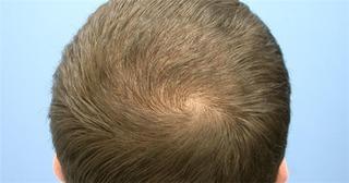 Xoáy tóc đỉnh đầu tiết lộ gì về tương lai con trẻ?