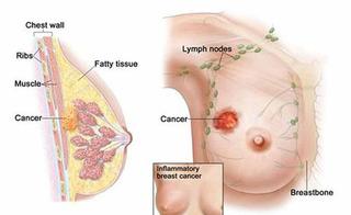 Biểu hiện ung thư vú và chìa khóa vàng trong điều trị