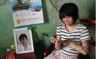 Vợ trẻ bị chồng tẩm xăng thiêu sống: