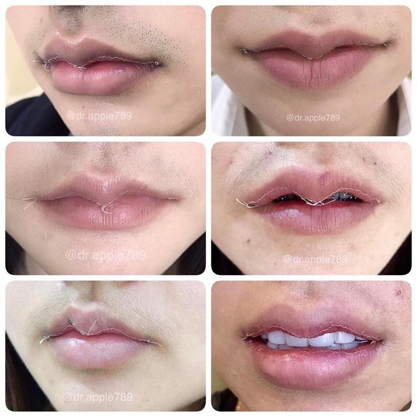phẫu thuật môi sừng trâu 3