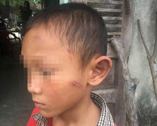 Vụ cháu bé 5 tuổi bị dì ruột bạo hành dã man: Cơ quan chức năng vào cuộc