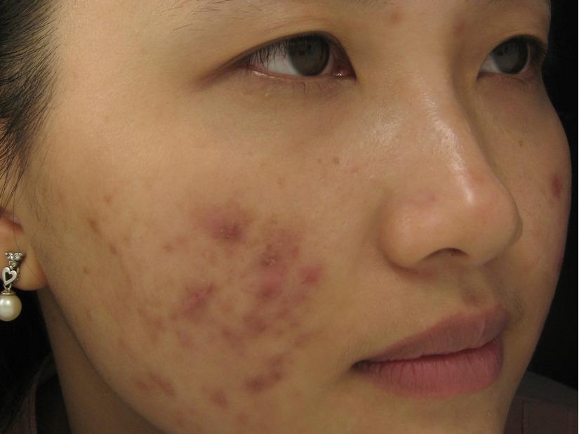 Việc nặn mụn bằng tay rất dễ để lại sẹo thâm trên khuôn mặt. Ảnh minh họa: triseo.com.vn
