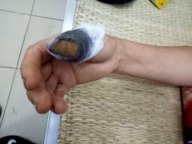 Ngón tay bị đứt lìa vì nắm lá mùng tơi
