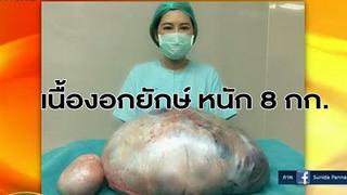 Mang khối u 8kg trong buồng trứng nhiều năm ròng mà cứ ngỡ mắc bệnh béo phì