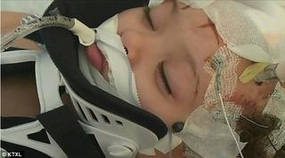 Bảo mẫu 16 tuổi đánh bé gái 24 tháng suýt vỡ sọ chỉ vì dám ăn... kẹo