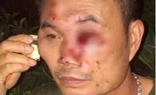 Bảo vệ khu đô thị Tây Nam Linh Đàm bị nhóm côn đồ hành hung thâm tím mặt