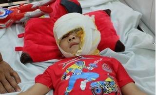 Bé trai 3 tuổi bỏng nặng, có nguy cơ hỏng mắt: