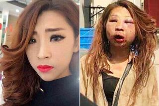 Cô gái mặt biến dạng như phẫu thuật thẩm mỹ hỏng sau trận đánh ghen dã man