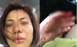 Vợ tố chồng bạo hành tình dục, đánh đập dã man, đã ly hôn nhưng vẫn tìm về đánh cả mẹ vợ
