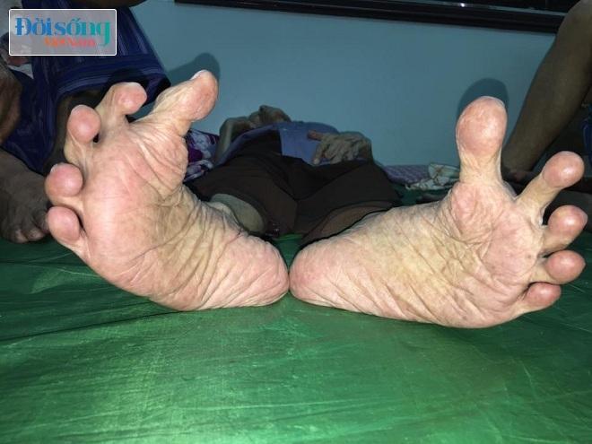 Cụ ông với bàn chân Giao Chỉ 3
