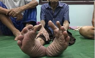 Thăm nhà người đàn ông có bàn chân Giao Chỉ nổi tiếng xứ Kinh Bắc
