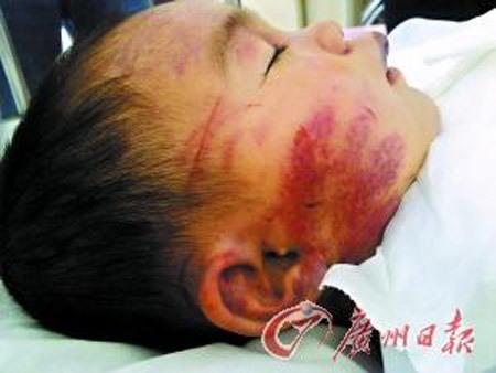 Gương mặt Tiểu Quyên hằn lên những vết lằn đỏ, môi thâm tím bầm dập vì mẹ kế hành hạ. Ảnh: Internet