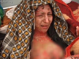 Hủ tục đốt cô dâu nếu thiếu tiền hồi môn khiến mọi phụ nữ Ấn Độ kinh sợ