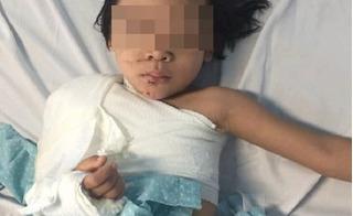 Va chạm với xe cẩu, bé gái 5 tuổi bị dập nát cánh tay phải