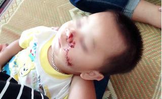 Phẫn nộ khi biết sự thật đau lòng vụ bố chém trúng mặt con trai nhỏ mới 2 tuổi