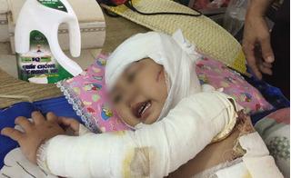 Bé gái 2 tuổi bị bỏng hóa chất thông cống: