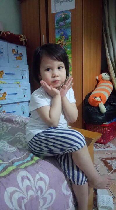 Bé gái 5 tuổi bị bỏng cồn 1