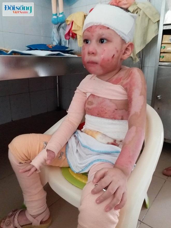 Bé gái 5 tuổi bị bỏng cồn 3