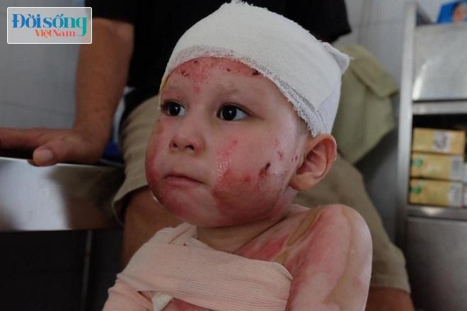 Bé gái 5 tuổi bị bỏng cồn 6