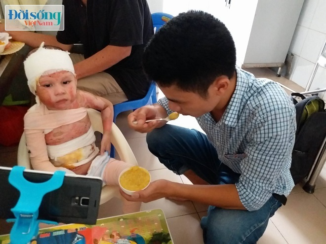 Bé gái 5 tuổi bị bỏng cồn 7