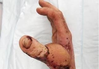Hà Nội: Một người phẫu thuật tạo hình ngón tay cái từ... ngón chân