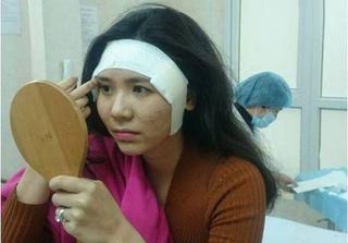 Liên tục bị lộ ảnh phẫu thuật thẩm mỹ, Thanh Bi buộc phải lên tiếng
