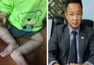 Vụ bé trai bị hành hung dã man: Hình phạt nào cho đối tượng bạo hành cháu bé đến chấn thương sọ não?