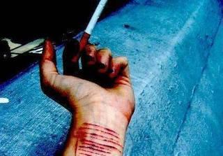 Buồn chán, nữ sinh cắt rạch tay để giải tỏa