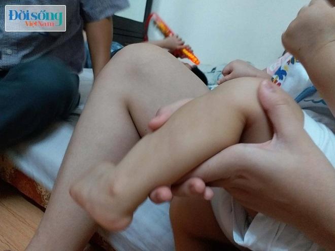 Bé trai bị bạo hành ở Hà Nội 7