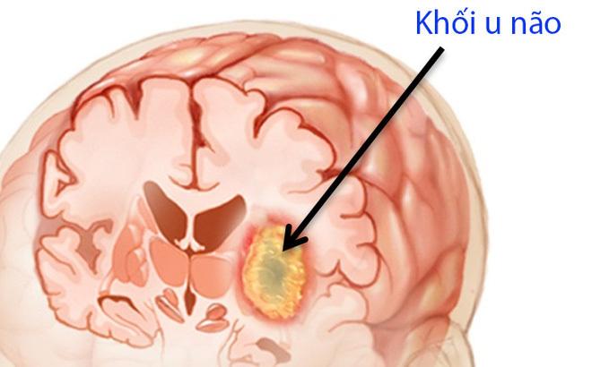 Bệnh u não