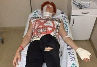 Nam ca sĩ thần tượng Kpop bị bỏng nặng khi quay MV