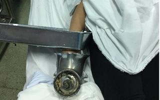 Cấp cứu bệnh nhân nhập viện với bàn tay bị cuốn vào máy xay thịt