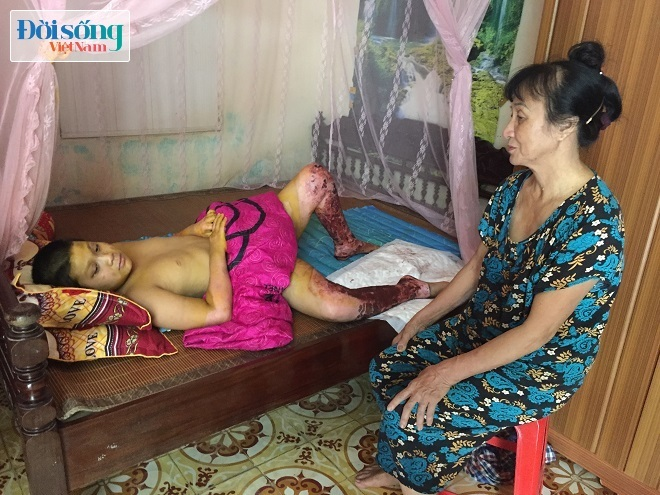 3 người bị bỏng khí gas ở Hà Nội khiến toàn thân nhiều vết thương