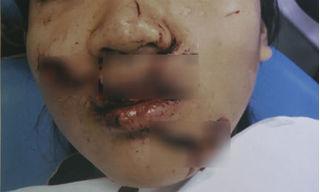 Nữ sinh ngã vào cửa kính, bác sĩ phải dùng 5m chỉ để khâu vết thương trên mặt