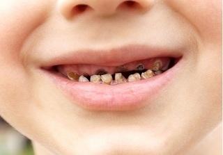 Thực hư tác dụng của viên ngậm ngừa sâu răng cho trẻ