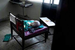 Kết cục đau lòng của bé gái mắc não úng thủy bị mẹ bỏ lại bệnh viện