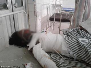 Từ chối lời cầu hôn, cô gái bị tạt dầu thiêu sống tại chỗ
