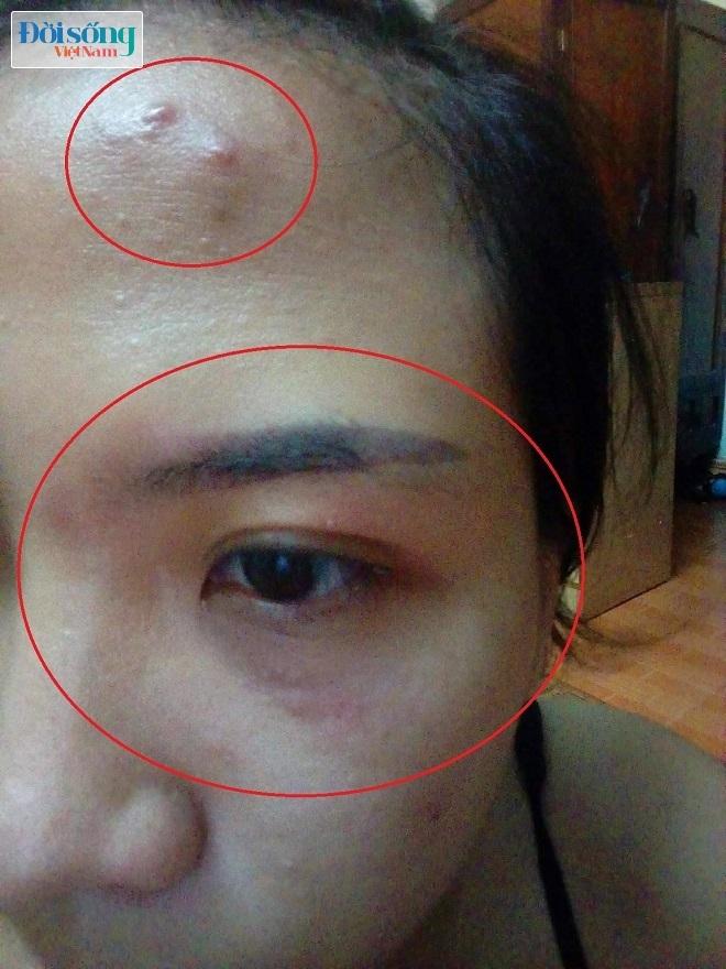 Sau khi dùng mỹ phẩm DeAura mặt chị T. nổi mụn và mắt dị ứng bỏng rát