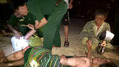 3 mẹ con bị bỏng nặng vì đổ nhầm xăng vào đèn dầu để thắp sáng