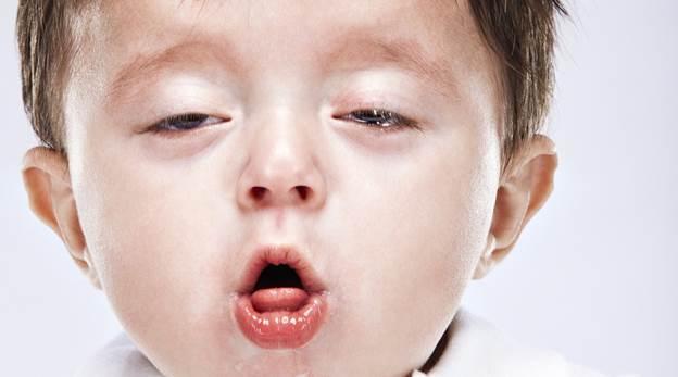 Chữa ho cho trẻ bằng gừng và hành tây cực hiệu nghiệm1