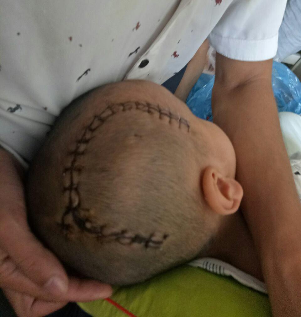 Bé trai 3 tuổi bị xuất huyết não phải mổ gấp để cứu được tính mạng