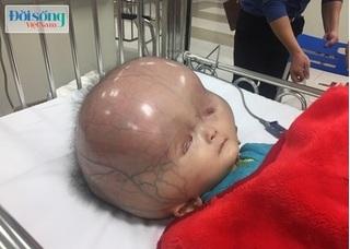 Bác sỹ Phụ sản Trung ương chỉ cách phòng bệnh não úng thủy cho trẻ ngay từ trong bụng mẹ