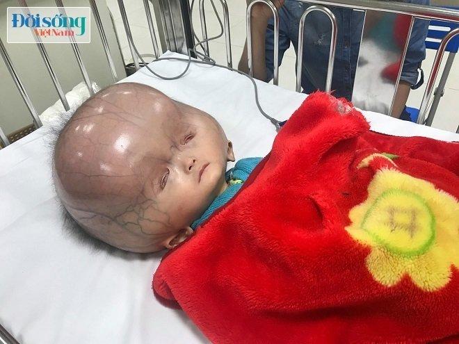 Cháu bé bị não úng thủy ở Thanh Hóa