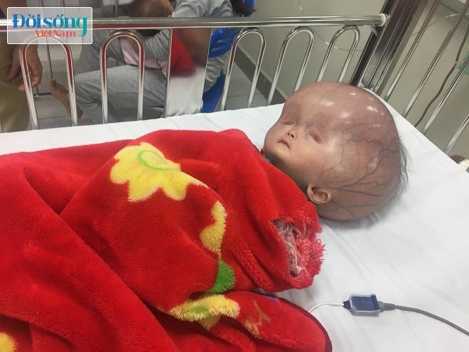 Cháu bé bị não úng thủy ở Thanh Hóa bác sĩ Singapore nói có thể chữa trị được