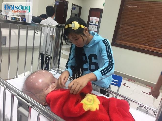 Cháu bé bị não úng thủy ở Thanh Hóa sức khỏe quá yếu nên gia đình không cho sang Singapore
