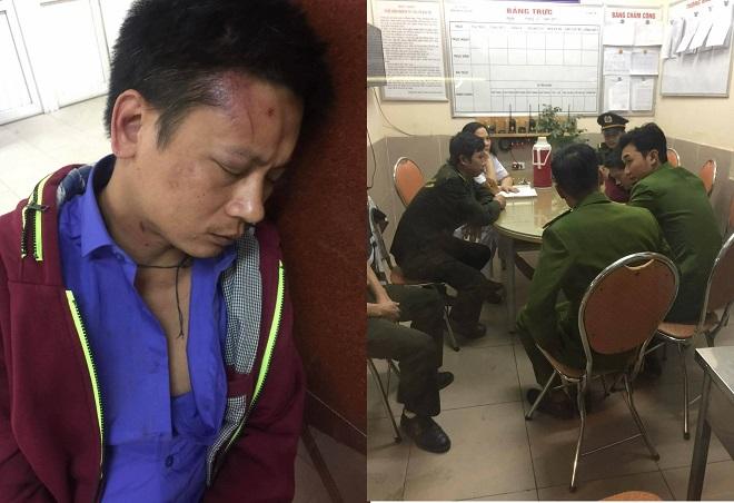 Đưa người nhà vào khám bệnh, người đàn ông bị 3 bảo vệ hành hung tại Bệnh viện Phụ sản Hà Nội