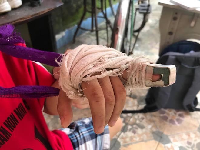 Cô giáo bị phụ huynh tố đánh gãy xương ngón tay của học sinh