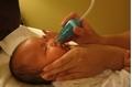 Từ vụ bé 5 tháng tuổi tử vong nghi do hút mũi, bác sỹ cảnh báo: