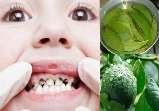 Chữa sâu răng cho trẻ cực hiệu quả bằng lá ổi và lá chanh