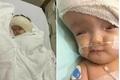 Bé gái 8 tháng tuổi bị não úng thủy sang Singapore phẫu thuật thành công